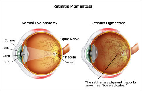 Retinitis Pigmentosa Treatment In Ayurveda